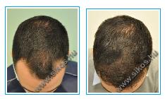 Hajátültetéshez