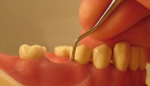 A fogsorkészítés hatékony szolgáltatás!